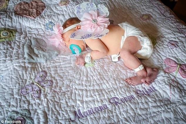 Dikkat! Bu Haberden Sonra Bebeğinizi Öperken Düşüneceksiniz! 18 Günlük Bebek Öpücük Yüzünden Öldü!