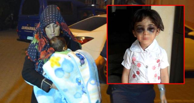 Üvey Anne Dehşet Saçtı! 3 Yaşındaki Çocuğu Döve Döve Tanınmaz Hale Getirdi