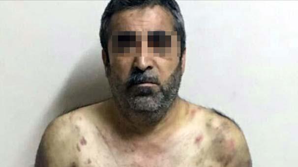 Esenyurt'ta İşkence Evi Bulundu! Suriyelileri Kaçırıp Hortum ve Kırbaçla İşkence Yapmışlar