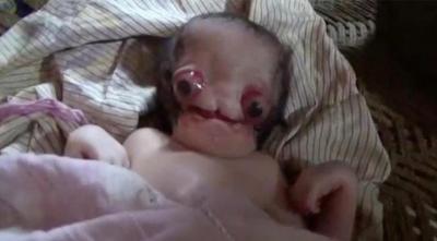 Anne Bebeğini Görmek İsteyince Hayatının Şokunu Yaşadı! Çünkü Bebeği Şeytan Görünümlüydü!