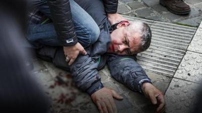 Belçika'nın Liege Kentinde Türk Olduğu İddia Edilen Saldırgan Belçika'lı Siyasetçiyi Bıçakladı!