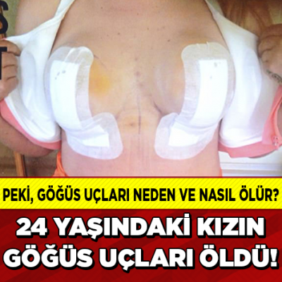 Bir Estetik Faciası Daha! 24 Yaşındaki Genç Kızın Göğüs Uçları Öldü!
