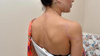 Dövmelerini Sildirmek İsteyenler Dikkat! Adana'da Genç Kadın Dövmelerini Sildirmek İsterken Kabusu Yaşadı!