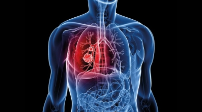 Kanser Hastalarına Altın Umut! Altın Zerrecikleri ile Kanser İlaçlarının Etkisi Arttırılabilir!