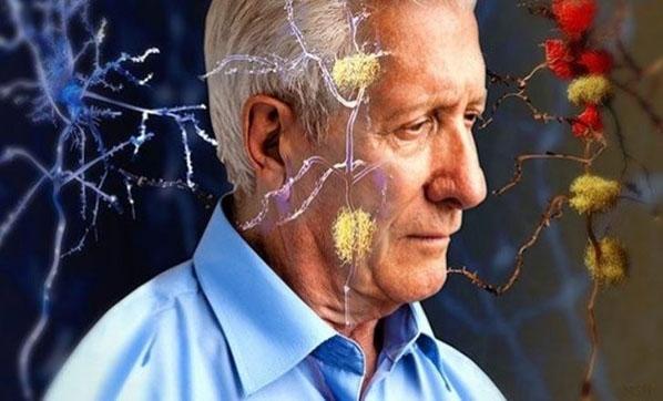 Alzheimer Riski 65 Yaşından Sonra Yükseliyor
