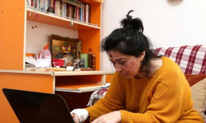 Cilt Kanseri Olan Genç Kadın, Meraklı Bakışlar ve Sorular Yüzünden Eve Hapsoldu