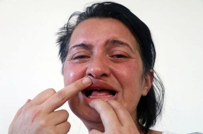Diş Beyazlatmak İsterken 32 Dişini Kaybeden Kadından İyi Haber