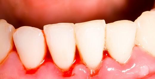 Dişlerinizi Kaybetmek İstemiyorsanız Diş Eti Kanamalarını Ciddiye Alın!