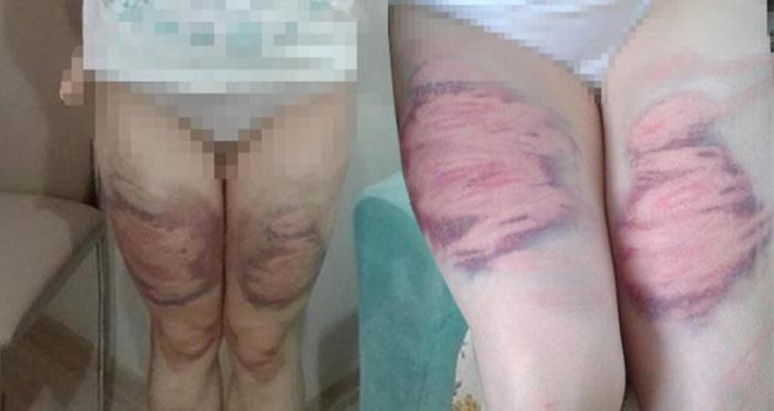 Eşini Oklava ile Döven ve Bacaklarını Mosmor Eden Kocadan Pişkin Savunma