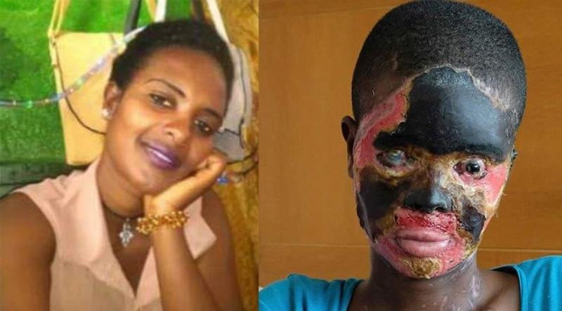 Kocası Asitle Saldırdı, Sonuç Felaket! Yüzü de Vücudu da Tanınmayacak Hale Geldi!