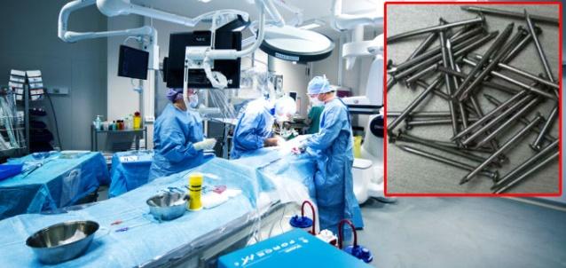 Şok Olay! Mide Ağrısı İle Gittiği Hastanede Bağırsağından 639 Adet Çivi Çıkarıldı