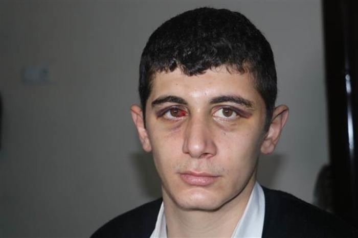 Adana'da Minibüste Skandal Olay! İşitme Engelli Genci 4 Kişi Öldüresiye Dövdü!