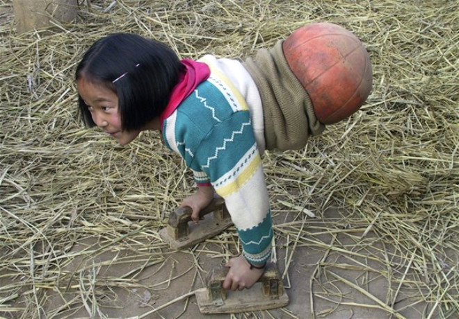 Tüm Dünya Onu Bu Fotoğraflarla Tanımıştı! Basketbol Kız Şimdi Bambaşka Biri Oldu