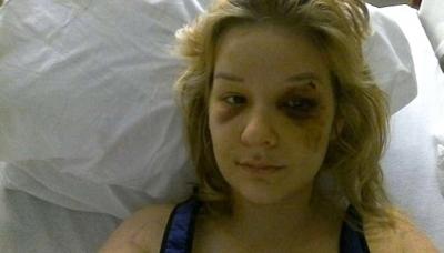Bunun Adı Vahşet! Eve Hapsettiği Sevgilisini Günlerce Döverek Tecavüz Etti, Görüntüleri Sosyal Medyan Paylaştı