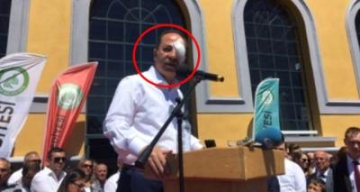 Edirne Belediye Başkanı'na Selfie Yapmak İçin Gelen Bir Kişi Saldırdı!