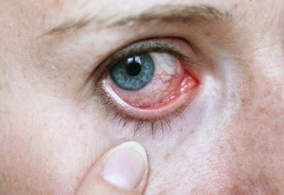 Gözlerinizdeki Kaşıntı ve Batmalara Dikkat! Göz Taşı Nedir, Nasıl Tedavi Edilir?