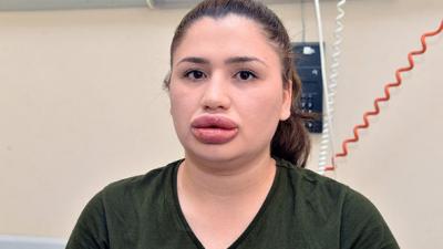Herkes Onu Bu Görüntüsüyle Tanımıştı! Silikon Mağduru Merve Hemşirenin Son Hali Şaşırttı