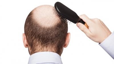 PRP İle Saç Dökülmesi Tedavisi