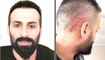 Saç Ekimi Yaptırmak İsterken Hayatı Kabusa Döndü! Kafa Derisinde Oluşan Yaralar Dehşete Düşürdü