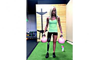 Sağ Bacağım Çirkin Diyen Genç Kadın Mini Etek Giymek İçin Bacağını Kestirdi!
