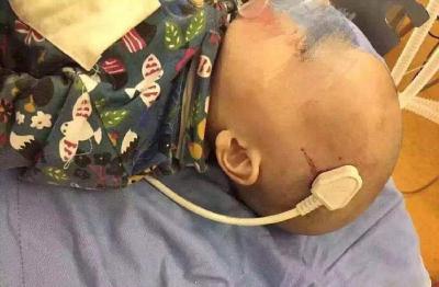 Yatağından Düşen 2 Yaşındaki Bebeğin Kafasına Fiş Saplandı!